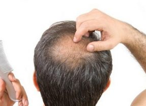 How to cure baldness naturally?