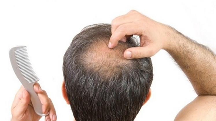 cure baldness